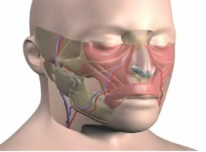 face-transplant