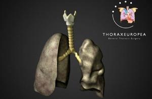 trachea-transplant