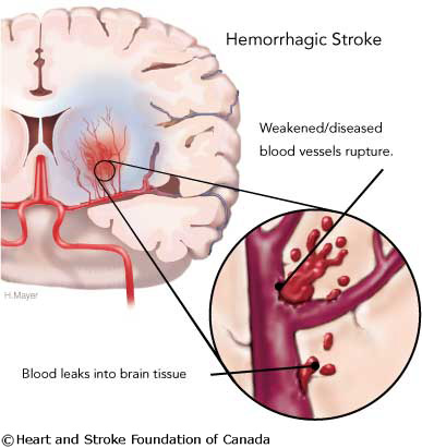 stroke_hemorrhage1
