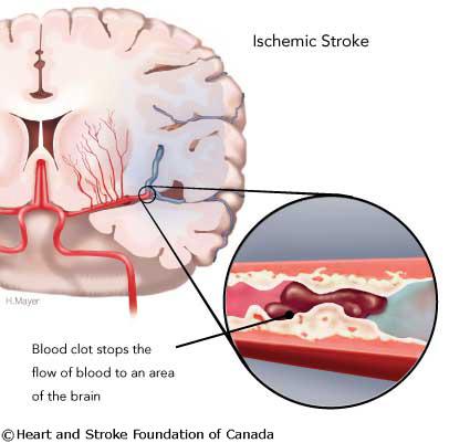 stroke_ischemia