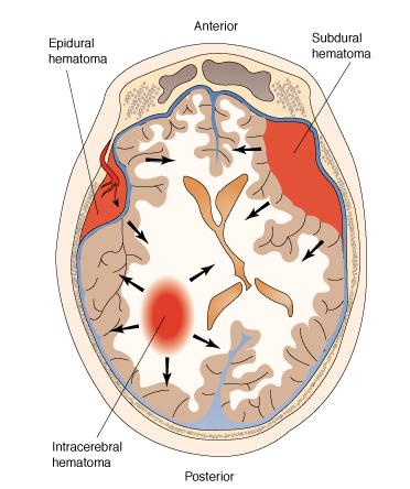 brain-hematoma1