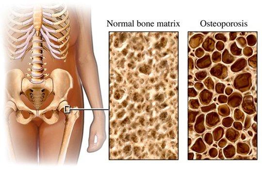 osteoporosis-(1)